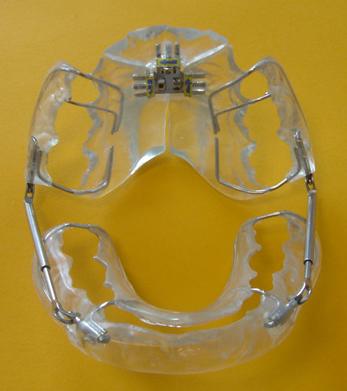 Appareil PUL-Dr Chamberland orthodontiste à Québec