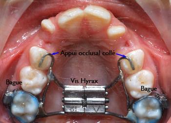 Appareil d'expansion palatine Hyrax bibague-Dr Chamberland orthodontiste à Québec