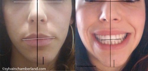 Asymetrie-faciale-vers-la-gauche-Chamberland-Orthodontiste-Quebec2