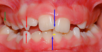 Dental interference or prematurity causing a functional shift to the right-Dr Chamberland orthodontist in Quebec City