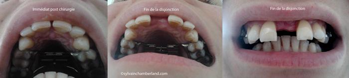 Diasteme-post-eprac-Chamberland-Orthodontiste-Quebec