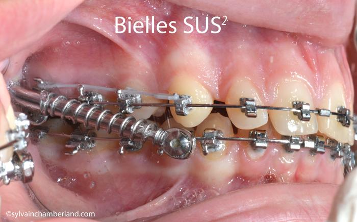 Bielles SUS2 class II corrector device-Dr Chamberland orthodontiste à Québec
