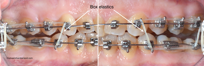 Elastique-intermaxillaire-post-chirurgie-orthognathique-Chamberland-orthodontiste-a-Quebec