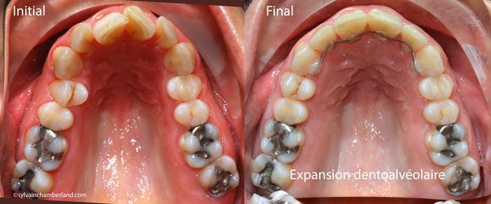 Expansion dentoalvéolaire-Dr Chamberland orthodontiste à Québec