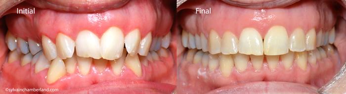 Expansion dentoalvéolaire vue de face-Chamberland-Dr Chamberland orthodontiste à Québec