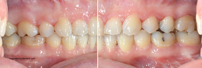 Finition-post-chirurgie-Chamberland-Orthodontiste-a-Quebec