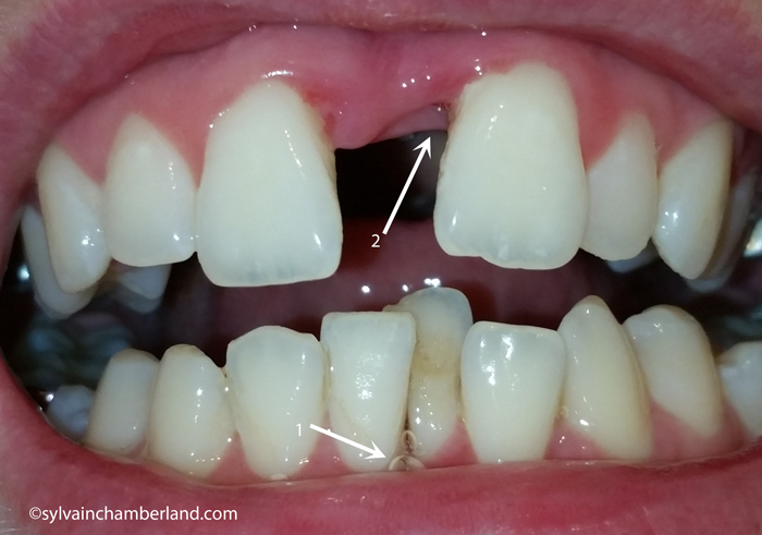 Guerison-fibreuse-interproximale-incisives-suprerieures-Chamberland-Orthodontiste-a-Quebec
