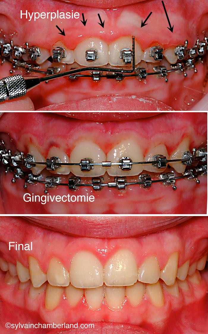 Hyperplasie-gingivale-fibreuse-Chamberland-Orthodontiste-a-quebec-DomGag