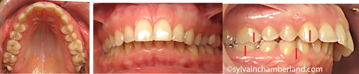 Katerina-composite-Chamberland-Orthodontiste-a-Quebec