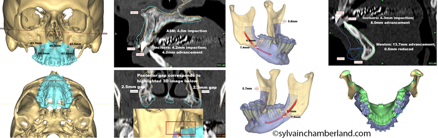 KeBiDu-planification-3D-par-mm-Chamberland-Orthodontiste-a-Quebec