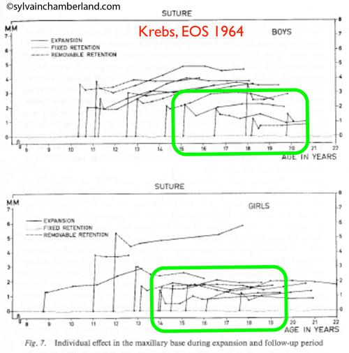Krebs-EOS-1964_expansion-palatine-boys-and-girls-Chamberland-Orthodontsite-Quebec