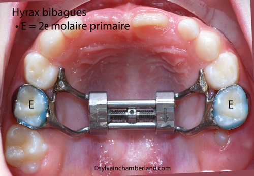 LoBol-Hyrax-bibagues-Chamberland-Orthodontiste-a-Quebec