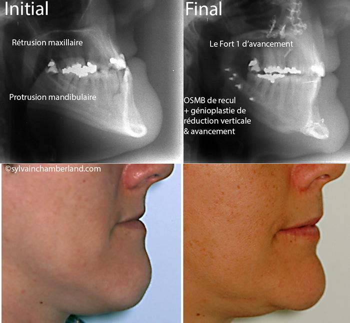 Menton-proeminent-classe-III-MaBoPr-Chamberland-Orthodontiste-a-Quebec-2
