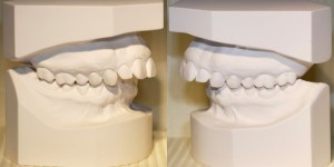 Orthodontic study models-Dr Chamberland orthodontist in Quebec City