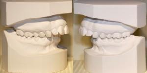 Modèles d'études orthodontiques-Dr Chamberland orthodontiste à Québec