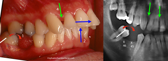 Mutilation dentaire collapse dimension verticale-Dr Chamberland orthodontiste à Québec