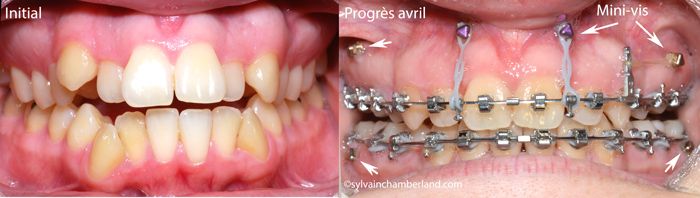 PaPl-minivis-d-ancrage_-fermeture-beance-anterieure-Chamberland-orthodontiste-a-Quebec