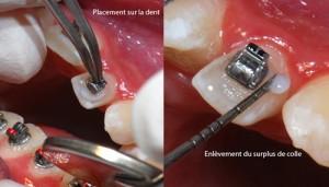 Pose du bracket sur la dent-Dr Chamberland orthodontiste à Québec