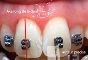 Position précise des brackets-Dr Chamberland orthodontiste à Québec