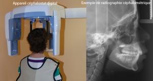Prise de radio céphalométrique-Dr Chamberland orthodontiste à Québec