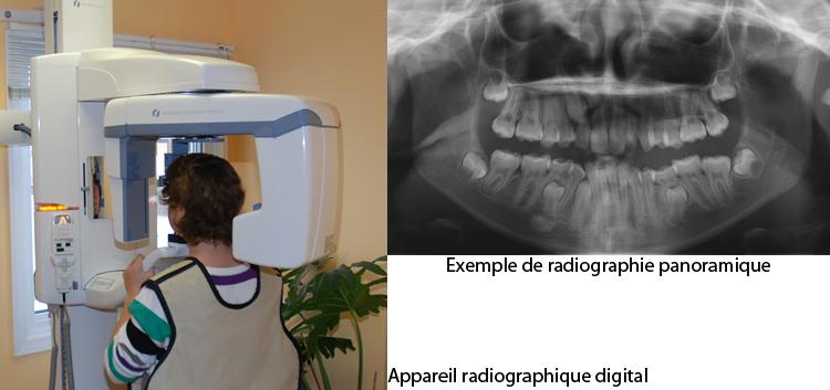 Prise de radio panoramique-Dr Chamberland orthodontiste à Québec