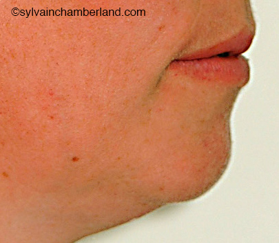 Profil-post-genioplastie-Chamberland-Orthodontiste-a-quebec