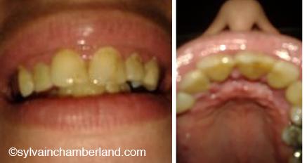 Roxane-parodontie-Chamberland-Orthodontiste-a-Quebec