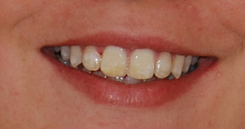 Smile MJ Be-Dr Chamberland orthodontist in Quebec City
