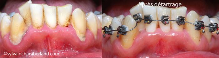 Tartre-supra-et-sous-gingival-avant-et-apres-nettoyage-Chamberland-Orthodontiste-Quebec