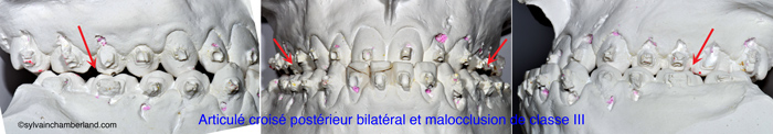 evaluation-de-la-largeur-des-maxillaires-sur-modeles-de-pierre-en-RC-Chamberland-Orthodontiste-a-Quebec
