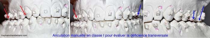 evaluation-de-la-largeur-des-maxillaires-sur-modeles-de-pierres-en-classe-I-Chamberland-Orthodontiste-a-Quebec