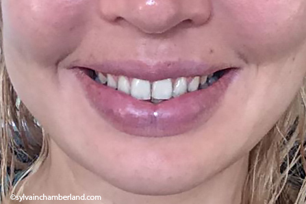 katerina-sourire-Chamberland-Orthodontiste-a-Quebec