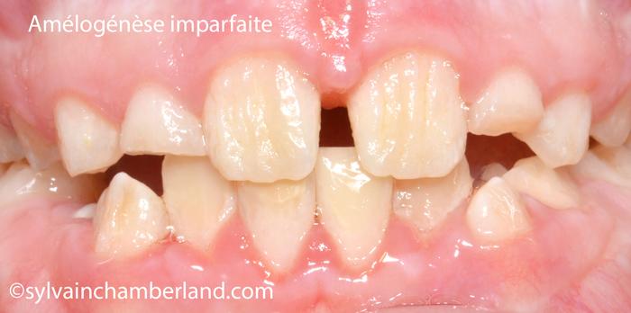 AnDes Amélogénèse imparfaite-Dr Chamberland orthodontiste à Québec