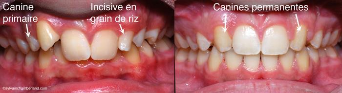 ChaLa substitution des latérales par les canines-Dr Chamberland orthodontiste à Québec