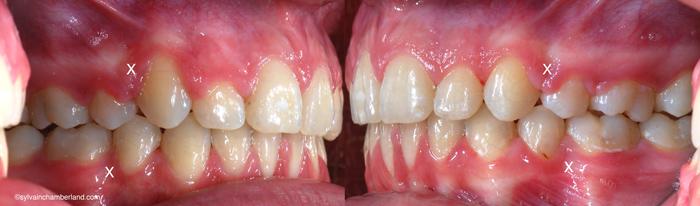 CiSam traitement exo prémolaire-Dr Chamberland orthodontiste à Québec
