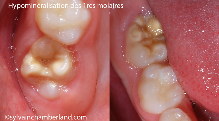 Hypominéralisation molaire RaFa-Dr Chamberland orthodontiste à Québec