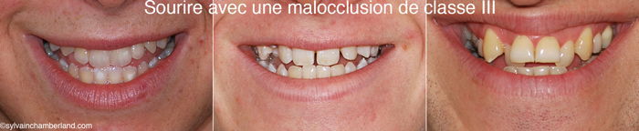 Sourire de classe III-Dr Chamberland orthodontiste à Québec