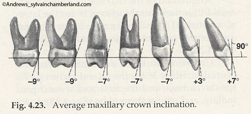 Inclinaison moyenne des couronnes-Dr Chamberland orthodontiste à Québec