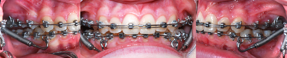Forsus Class II correctors-Dr Chamberland orthodontist in Quebec City