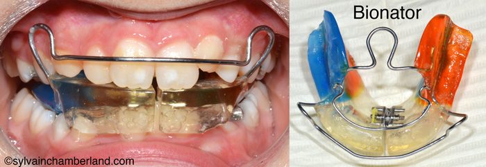 Bionator-Dr Chamberland orthodontist in Quebec City