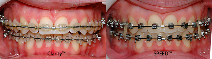 Clarity bracket versus regular SPEED-Dr Chamberland orthodontist in Quebec City