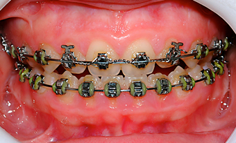 Attract bracket-Dr Chamberland orthodontist in Quebec City
