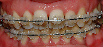 Clarity bracket and smoking-Dr Chamberland orthodontist in Quebec City