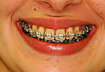 Inspire bracket smile-Dr Chamberland orthodontist in Quebec City