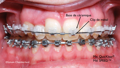 Bracket QuicKlear-Dr Chamberland orthodontiste à Québec