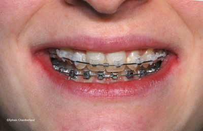 QuicKlear brackets smile-Dr Chamberland orthodontist in Quebec City