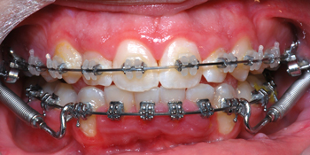 Clarity SL and SmartClip-Dr Chamberland orthodontist in Quebec City
