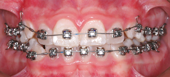 Damon Q Brackets-Dr Chamberland orthodontist in Quebec City