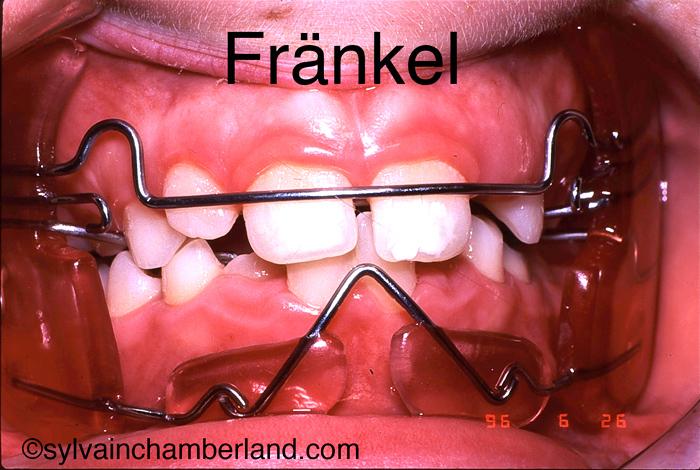 Fränkel function regulator-Dr Chamberland orthodontiste à Québec