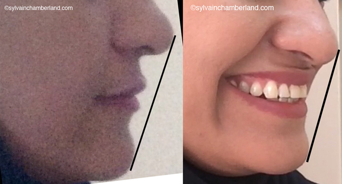 Profile lip retruded to esthetic plane-Dr Chamberland orthodontist in Quebec City